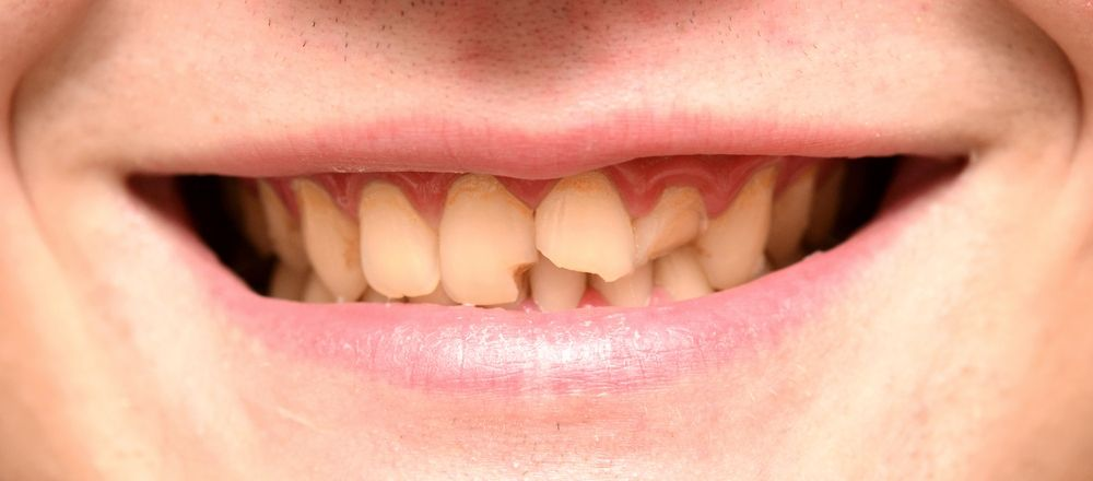 how to fix a broken tooth at home