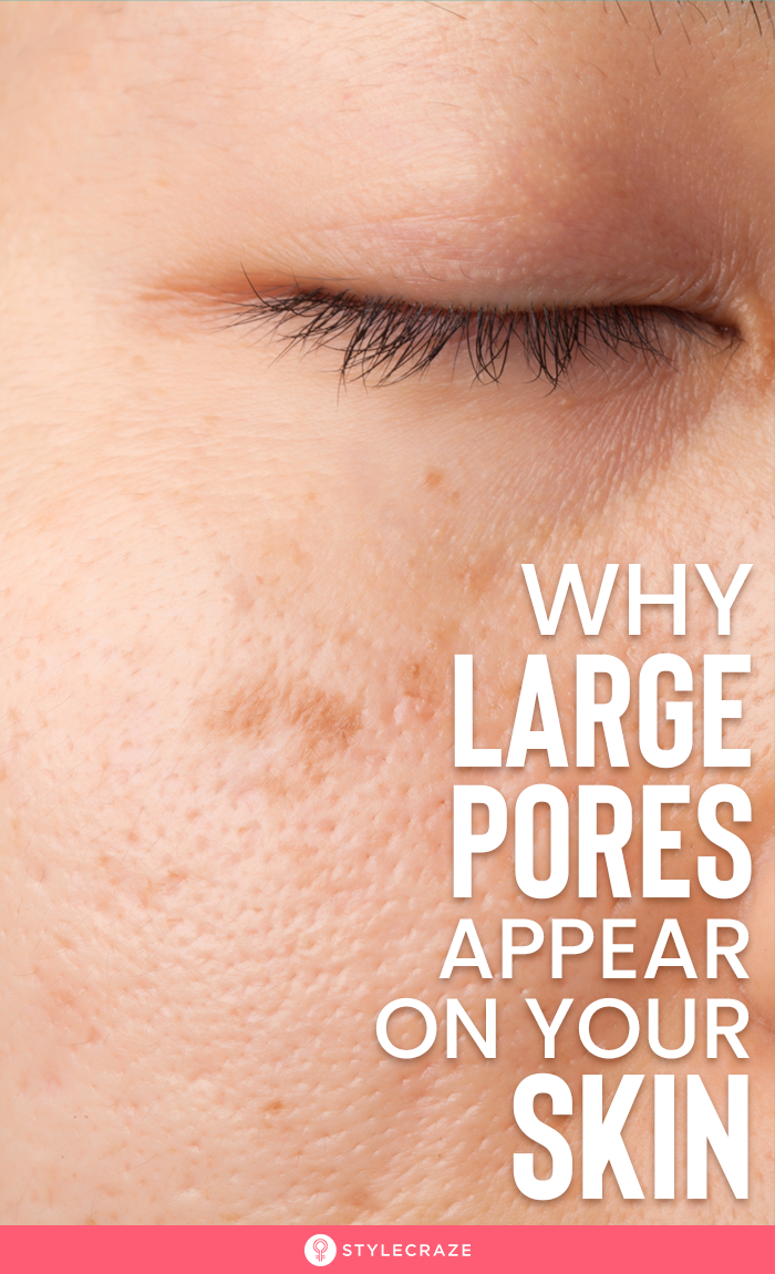 How To Get Rid Of Small Pores On Your Face