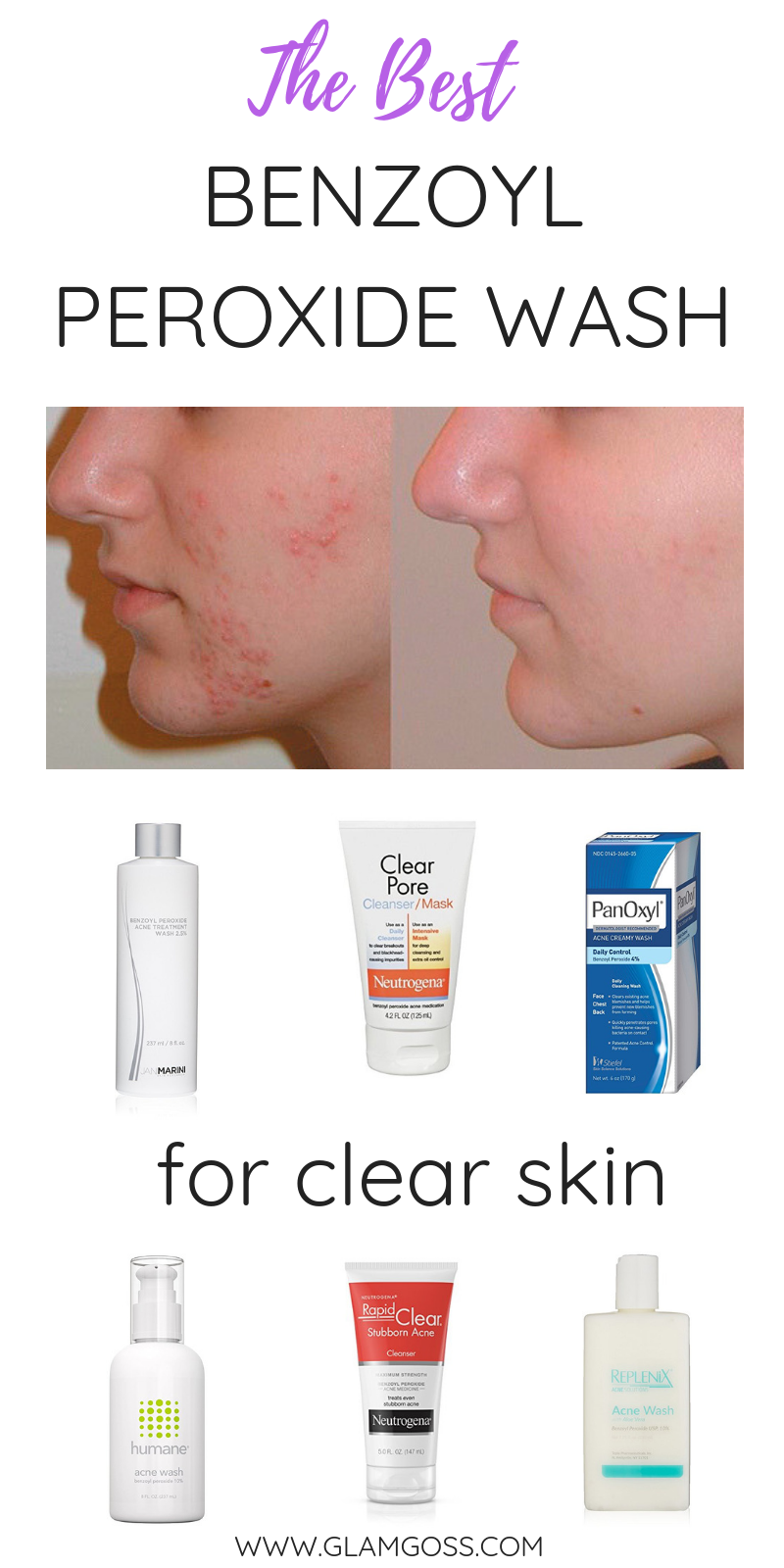 Looking for a fast way to heal acne? This type of fash