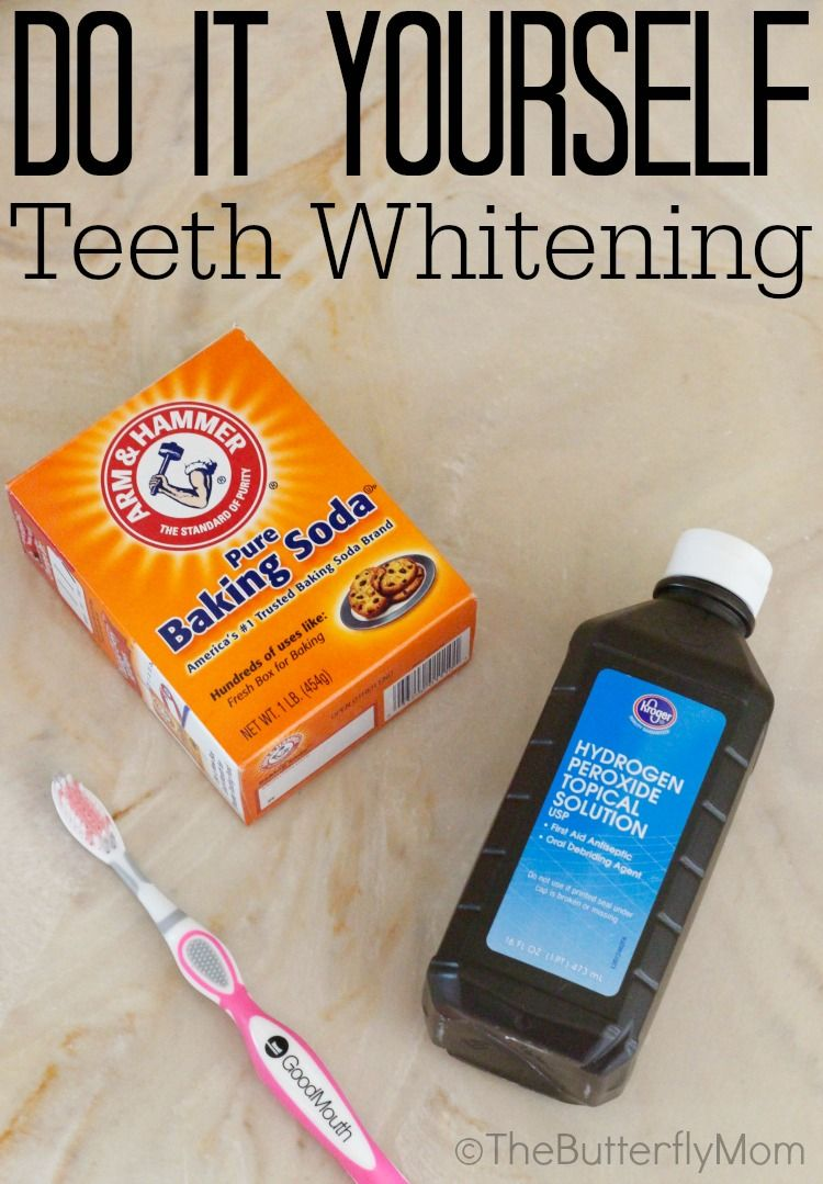 Do it yourself teeth whitening a diy that is affordable and safer do it yourself teeth whitening a diy that is affordable and safer for sensitive solutioingenieria Image collections