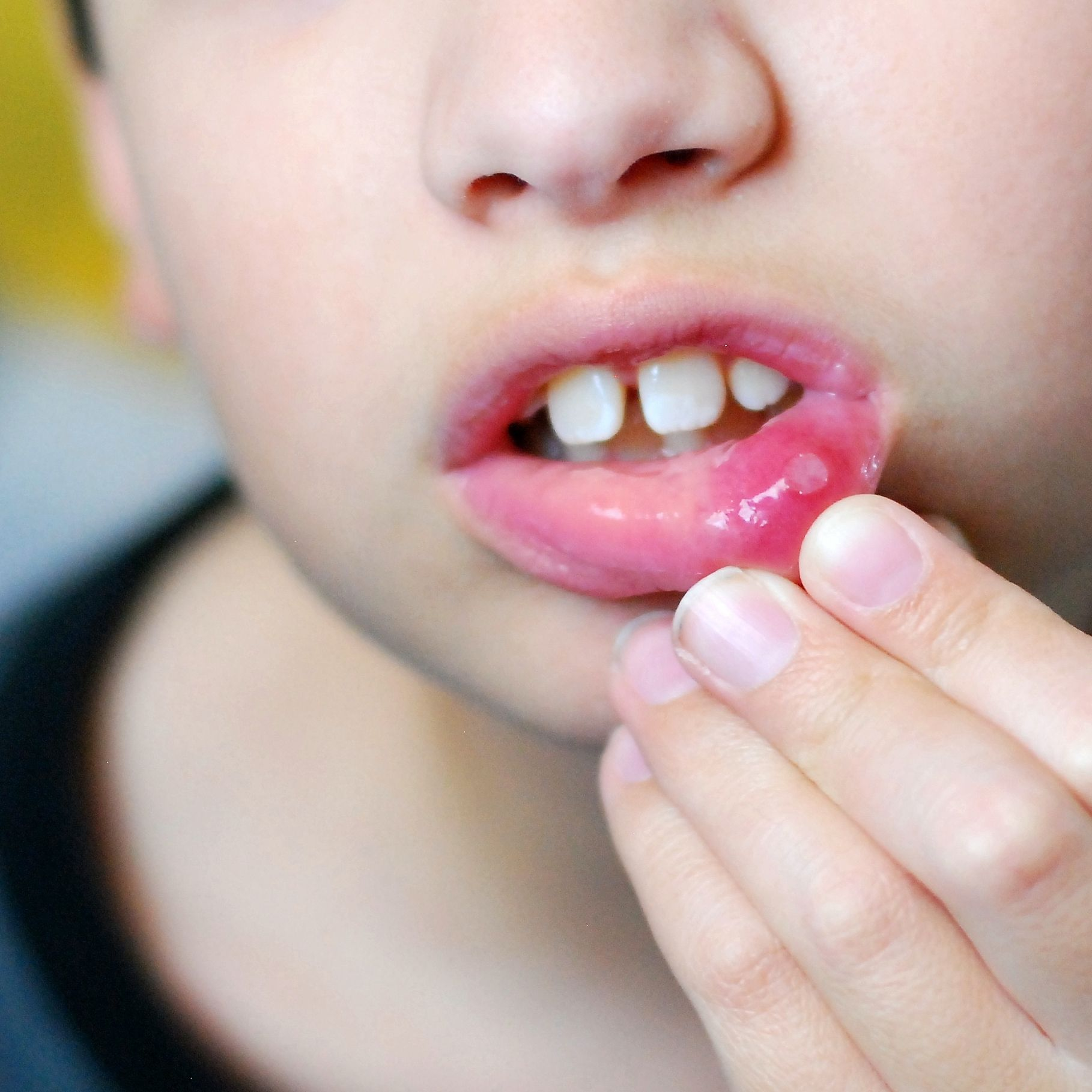 Mouth Ulcers In Children New Kids Center Mouth Ulcers