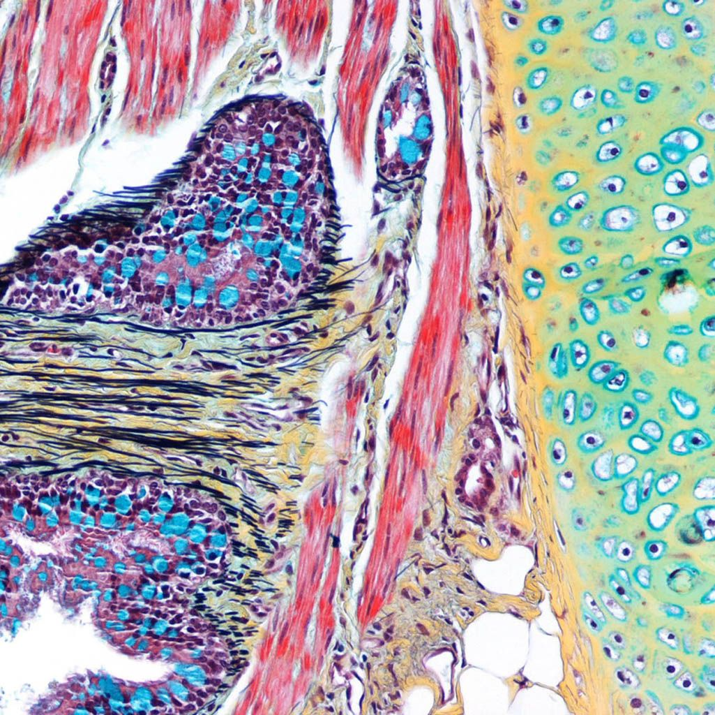 Tissue histology sample stained with Movat's pentachrome stain ...