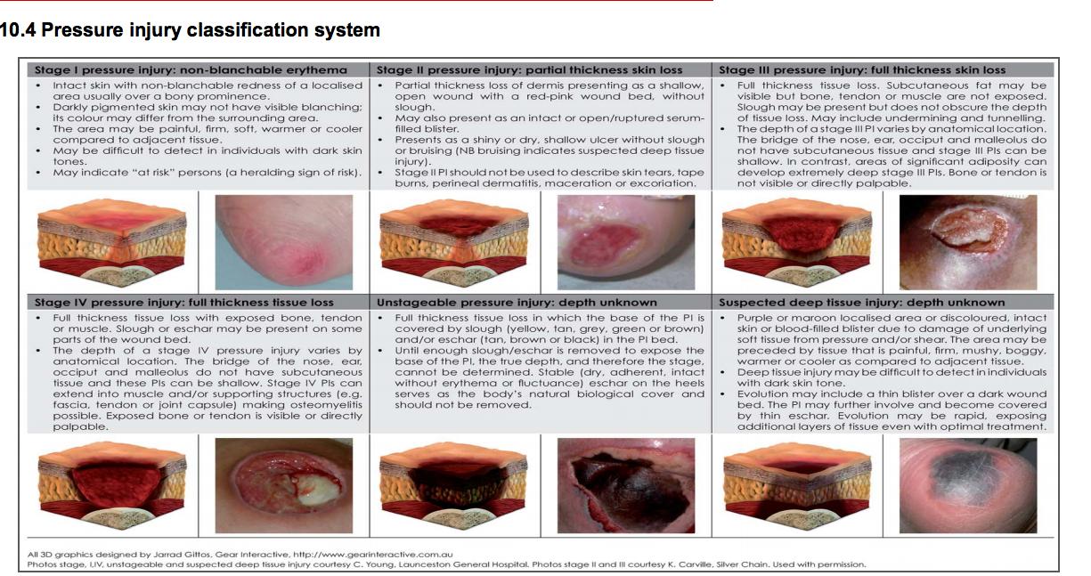 Pressure Ulcer Staging Pressure ulcer, Childhood disease