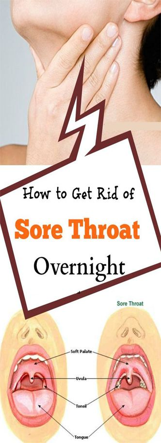 Top 7 Essential Oils for Sore Throat that Work Fast  #lifestyle  #fitness
