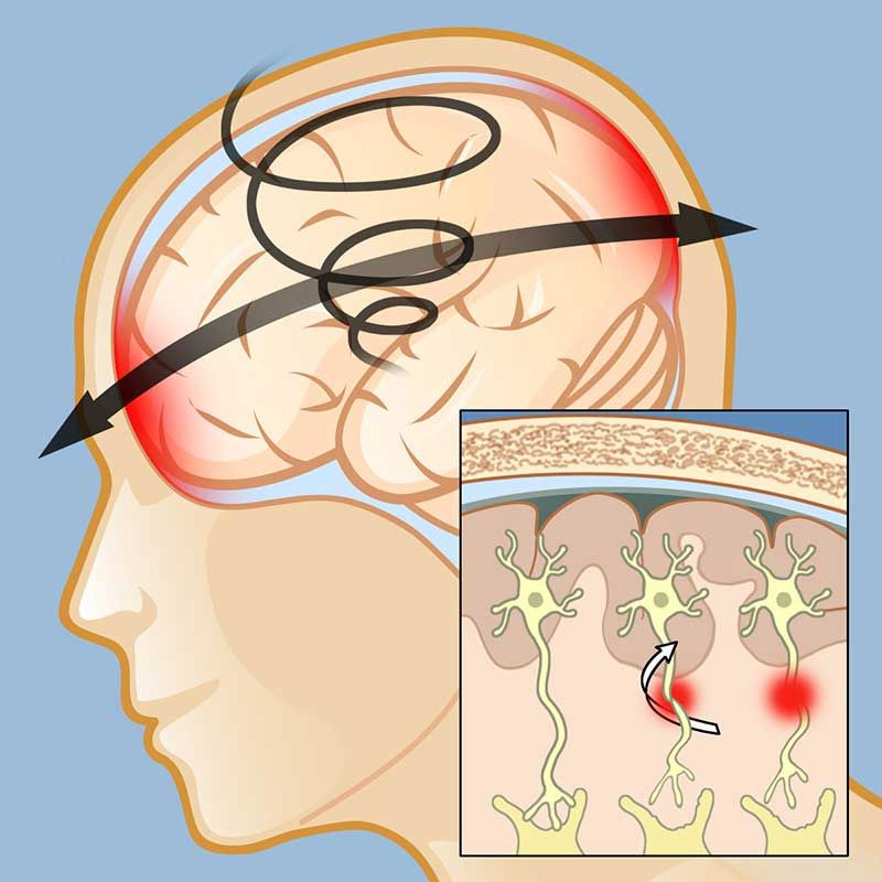 Diffuse Axonal Injury - Google Search (With images ...
