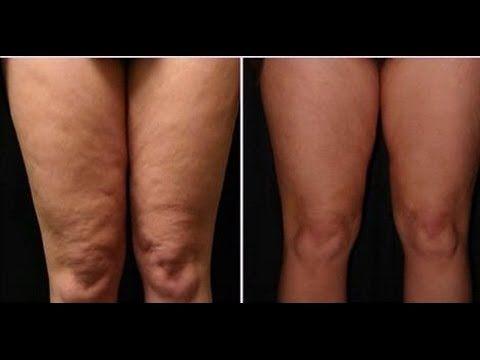 Ejercicios para piernas muy flacidas
