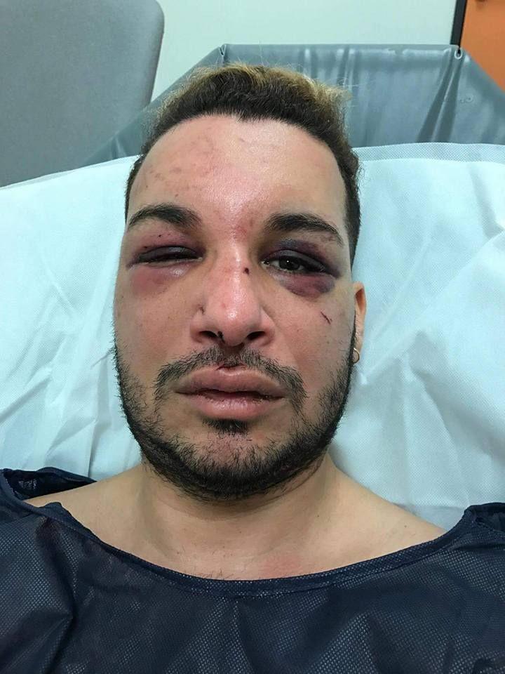 Ativista francês é agredido e estuprado por dois dias