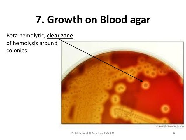 how to grow bacteria with agar