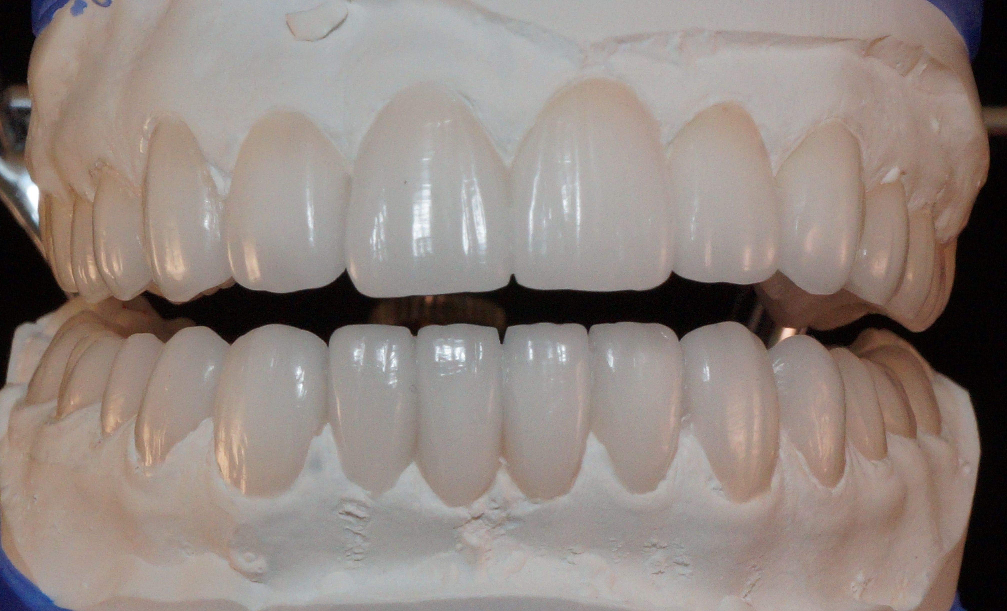 Diagnostic Wax Up For Ips E Max Porcelain Crowns Www