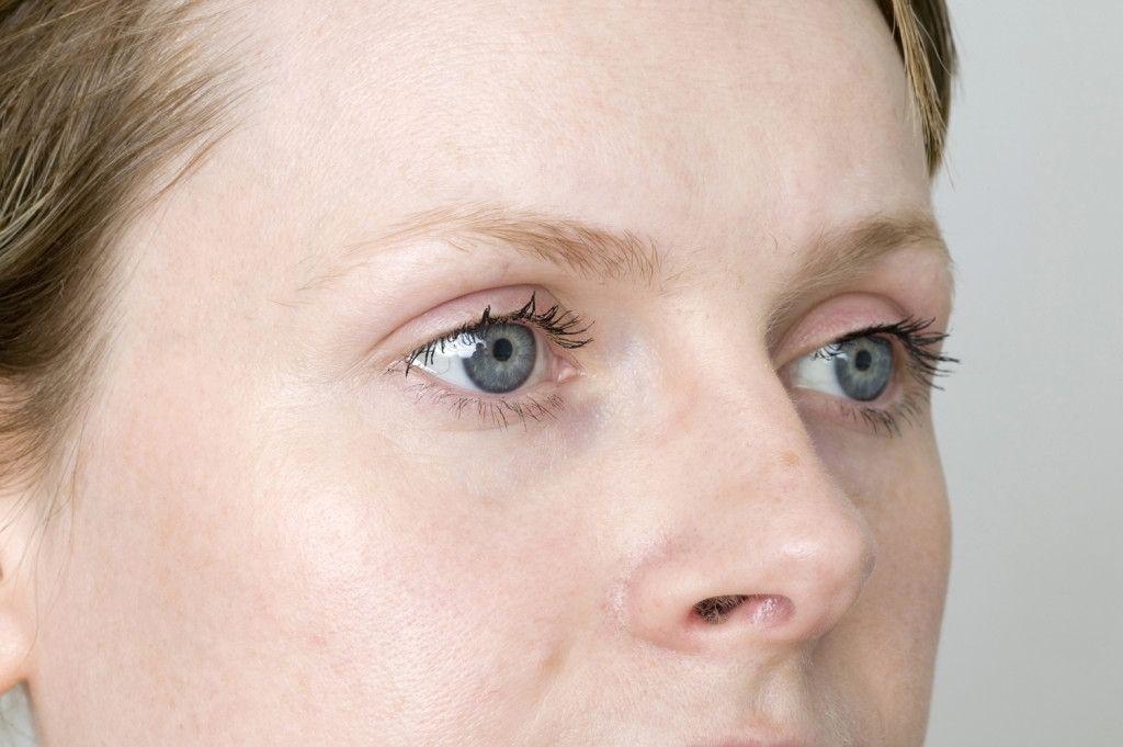 hypothyreosis, látás