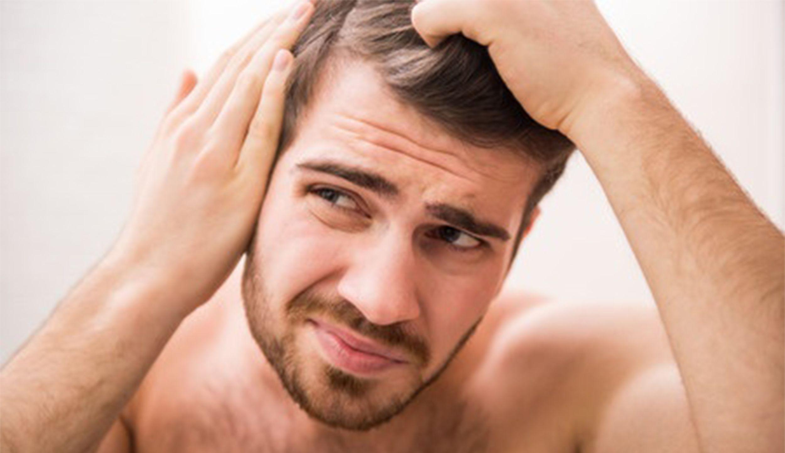 Rapid Hair Loss Causes In Men