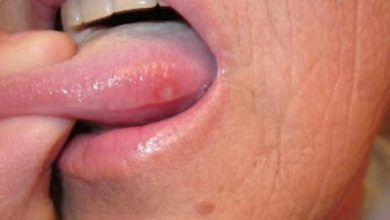 How To Get Rid Of Cold Sores Overnight And Fast Blister