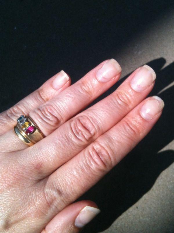 Acrylic Nails After Removal - http://www.mycutenails.xyz/acrylic ...