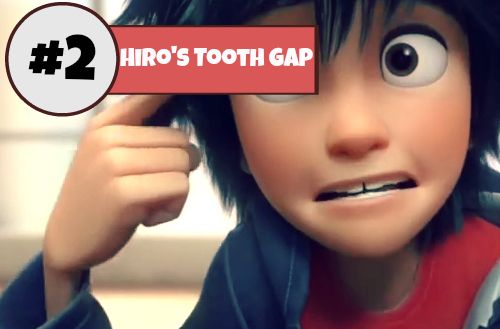 hiro s tooth gap