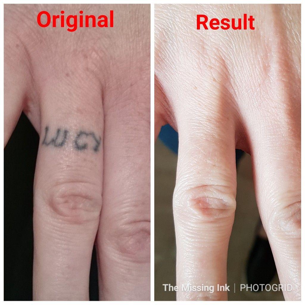 Finger tattoo laser tattoo removal tattoo removal