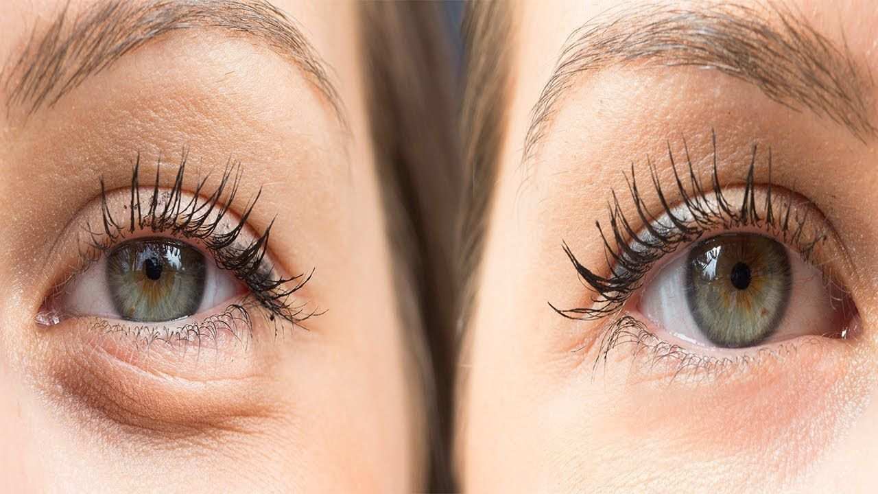 Useful Home Remedies for Removing Bags Under Eyes 100