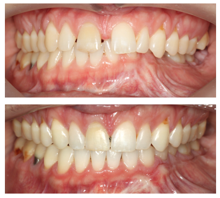Before and after picture. Actual patient of Impressions Orthodontics.