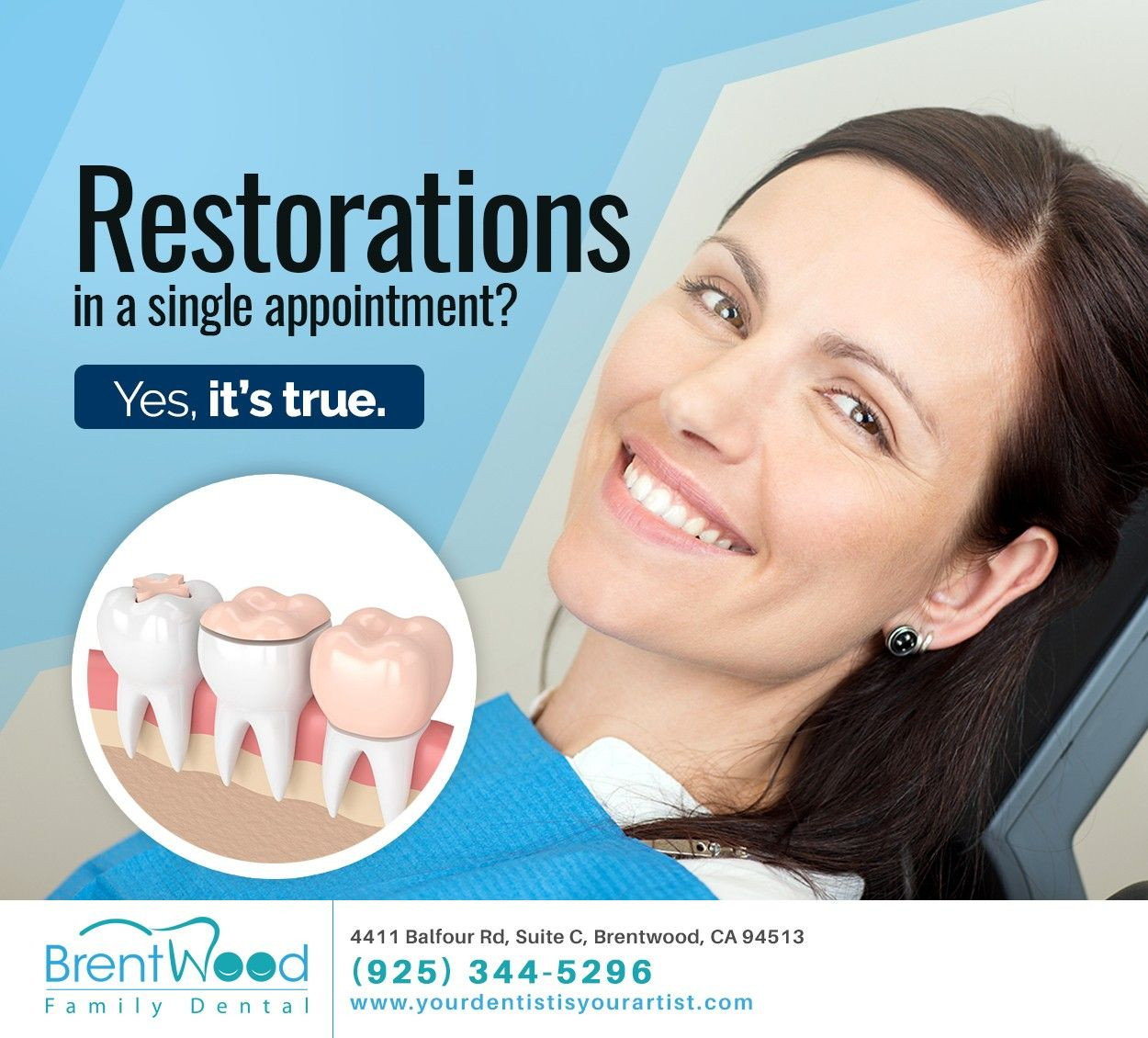 Restorations In A Single Appointment In 2020 Dentistry Cosmetic Dentistry Dental Care