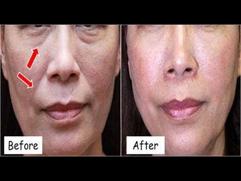 Tighten Sagging Skin And Remove Laugh Lines Naturally 100 Works With Skin Care Remedies Skin Care Women Sagging Skin