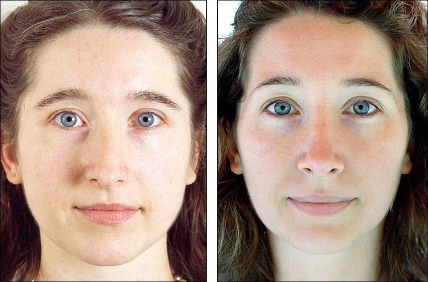 revision rhinoplasty Rhinoplasty, Facial plastic, Nose