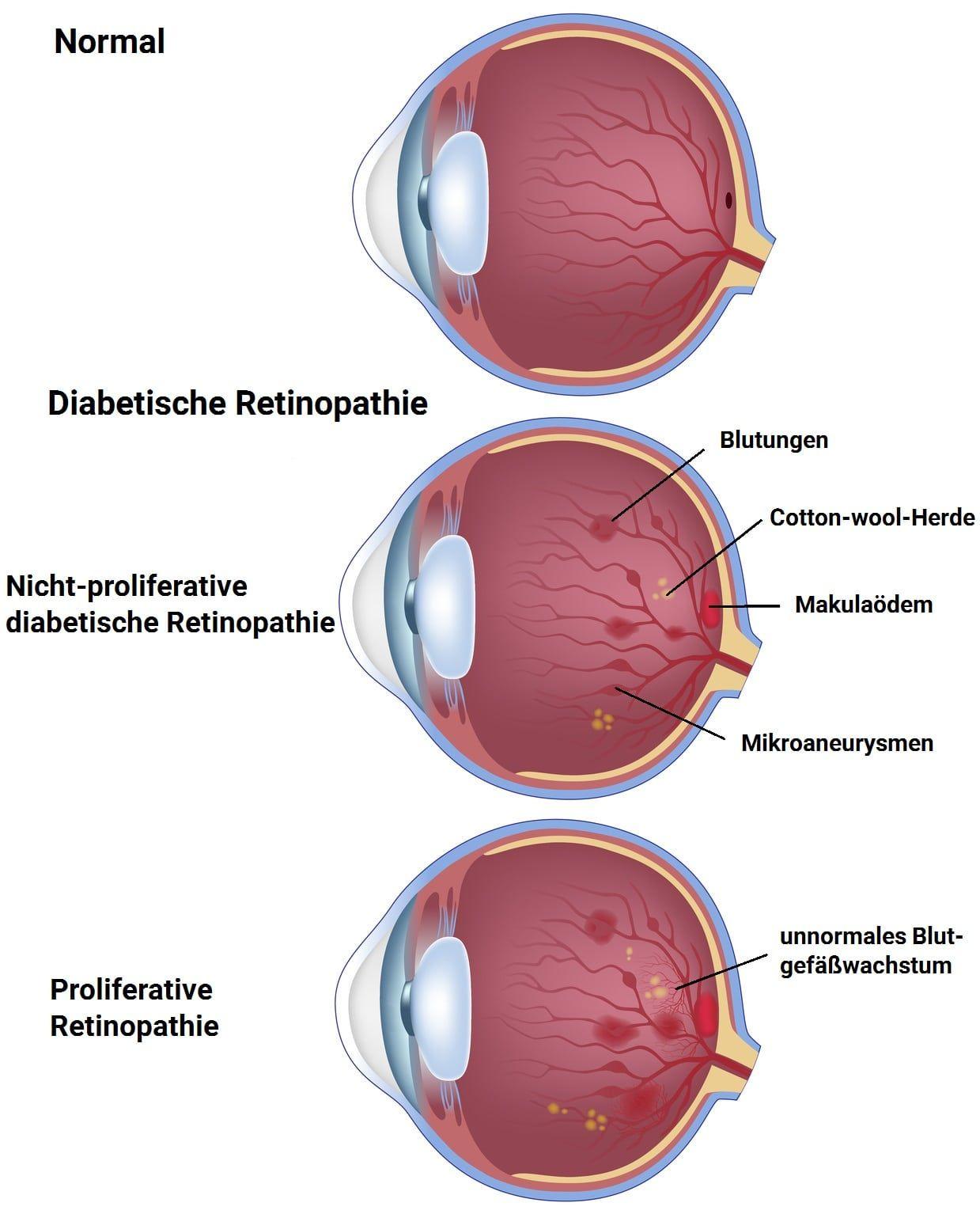 Diabetes - Auswirkung aufs Auge (Diabetische Retinopathie ...