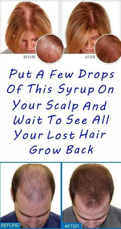 Put A Few Drops Of This Syrup On Your Scalp And Wait To See All