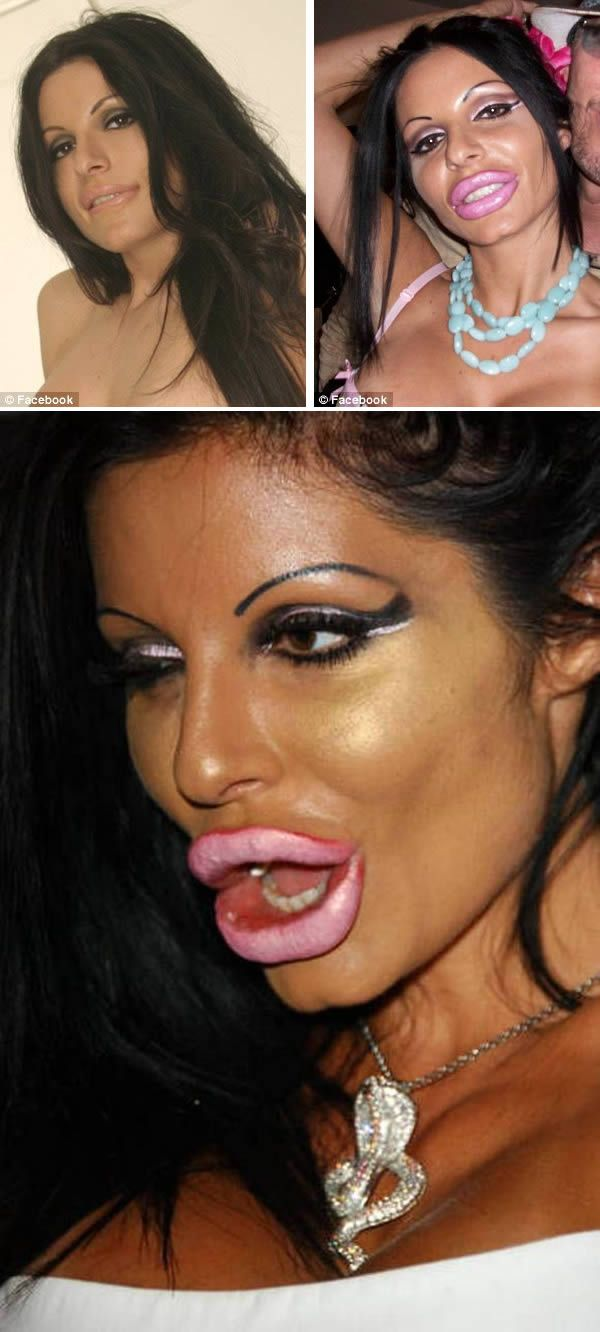 7 Lips Jobs Gone Wrong - Celebrity Plastic Surgery