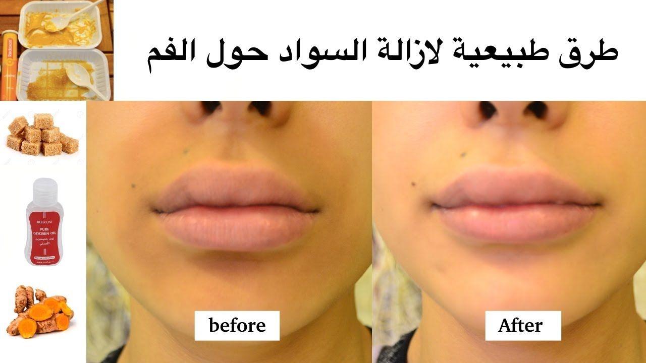 اقوى 4 طرق طبيعية ومذهلة لتفتيح وازالة السواد حول الفم في دقايق Abs