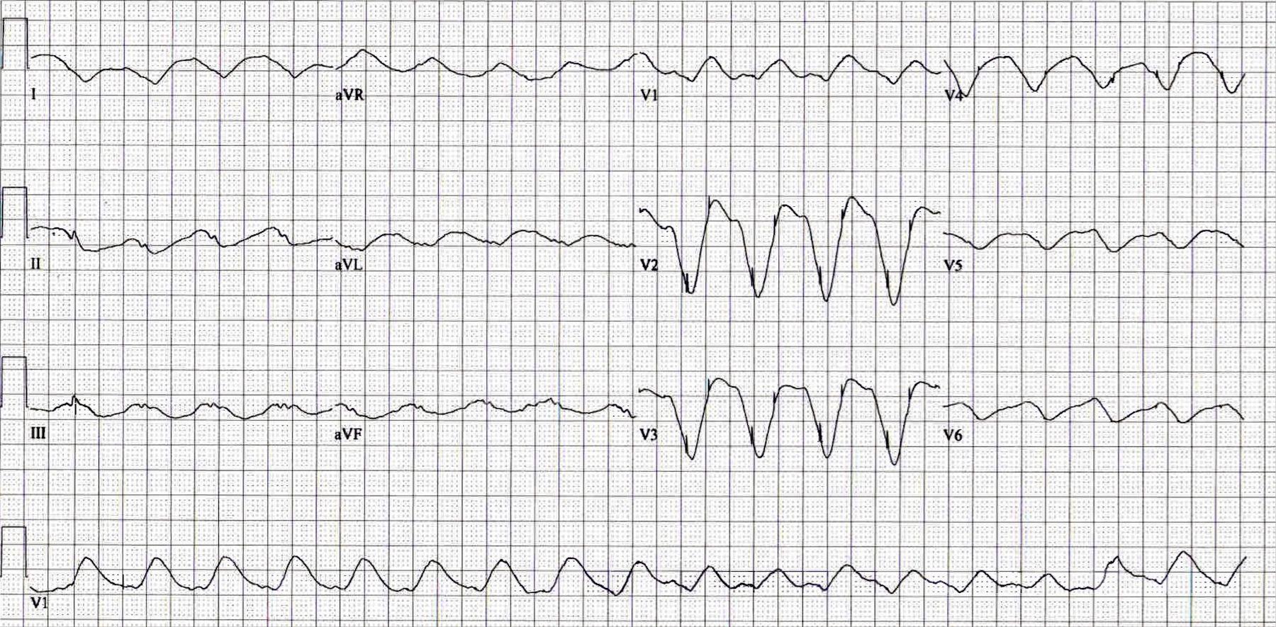 Pin on EKG-EMS