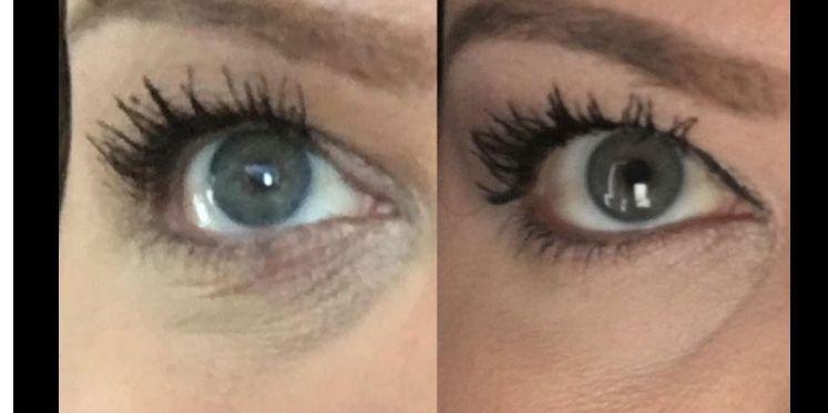 13,000 People Swear This Eye Cream Erases Dark Circles — Prevention