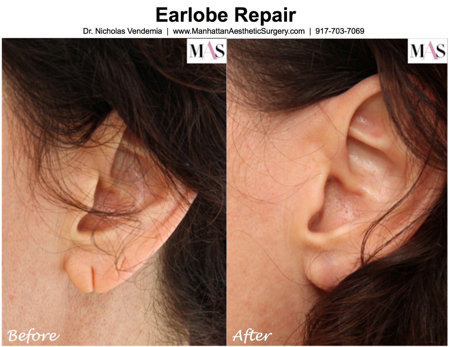 Earlobe Repair Is A Fairlymon Procedure, And The Mostmon Cause Is A  Gradual