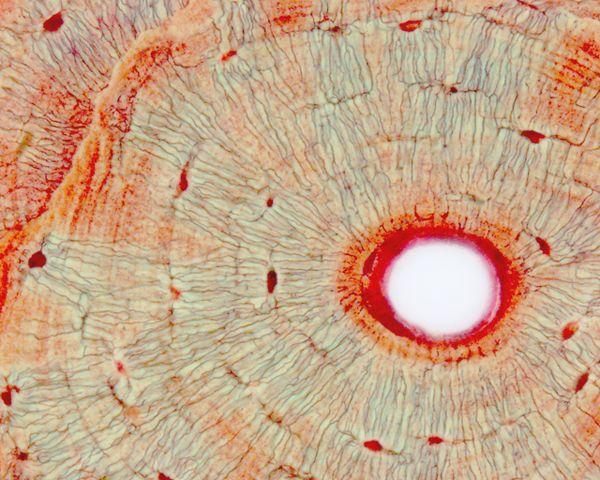 Osteocytes & Canaliculi | AnatomyBox