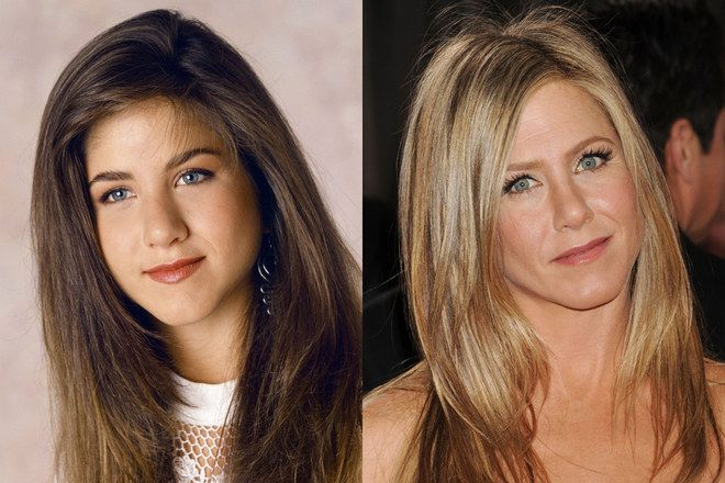 jennifer aniston before and after nose job before after pictures