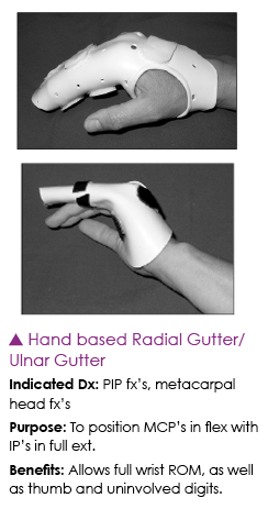 Hand Based Radial Gutter Splints Hand Therapy