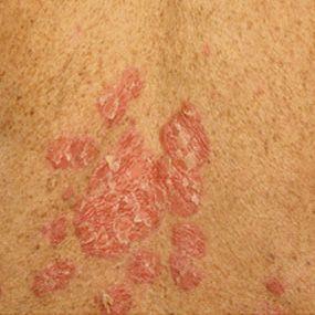 Pictures Of Psoriatic Arthritis Symptoms Psoriatic Psoriatic Arthritis Arthritis