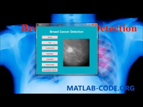 BREAST CANCER DETECTION USING MATLAB | Diagnose Detect