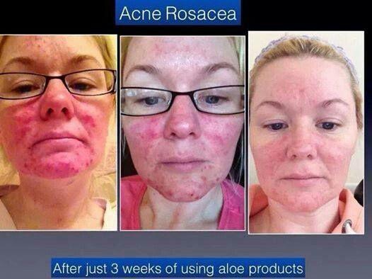 Cure rosacea aloe vera Rosacea Natural