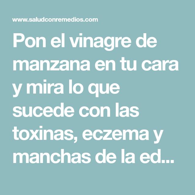 Pon El Vinagre De Manzana En Tu Cara Y Mira Lo Que Sucede Con Las Toxinas Eczema Y Manchas De La Edad Health Remedies Body Care Skin Health