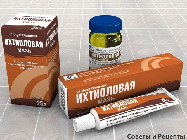 ichthyol és prostatitis)