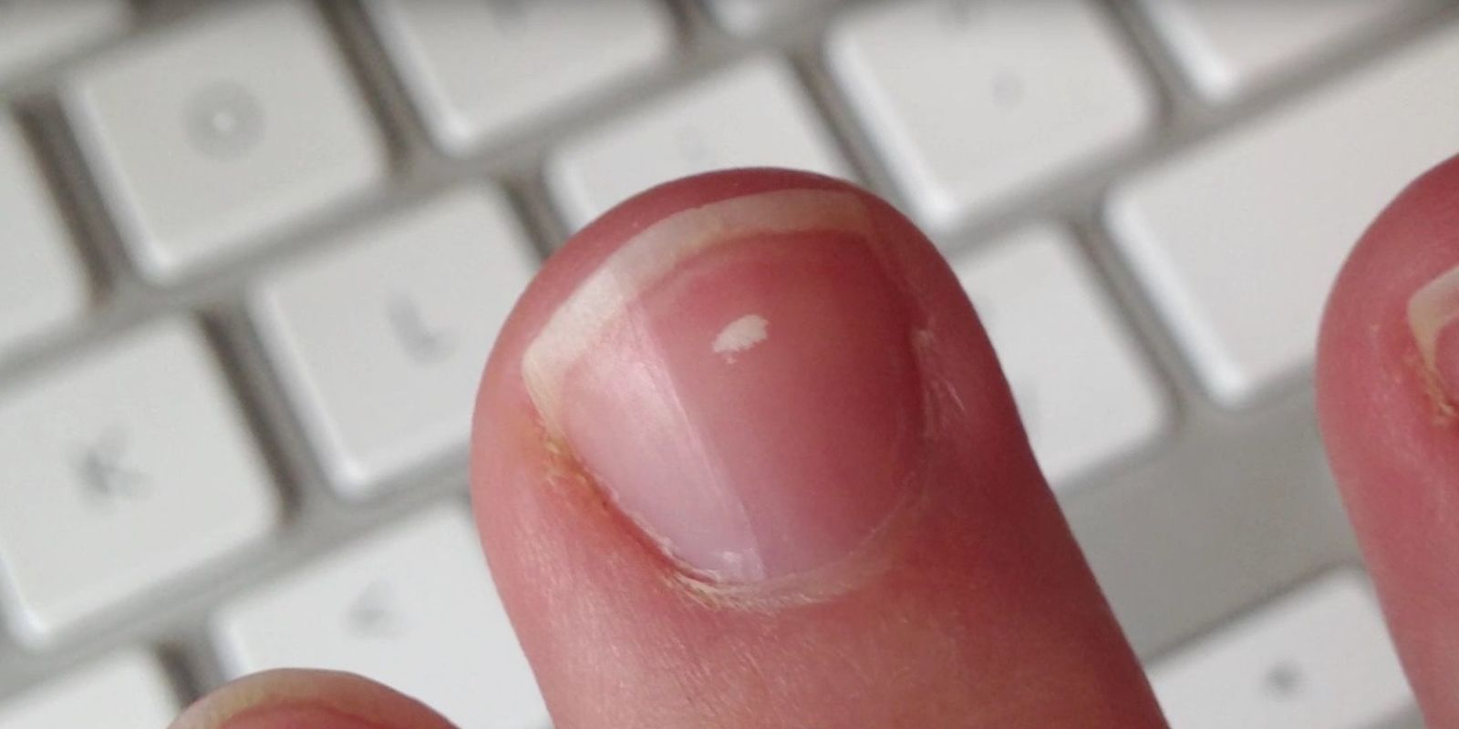 This Is The Real Reason We Get White Marks On Our Nails White Lines On Nails White Patches On Nails White Spots On Nails