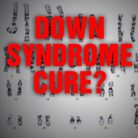 Down Syndrome Cure?