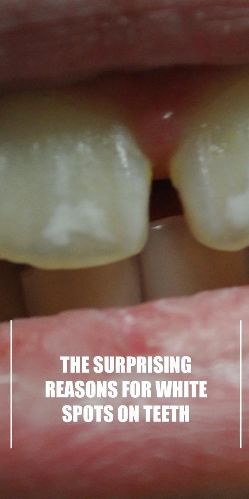 Weiße Flecken auf den Zähnen führen dazu, dass sich viele Menschen über die …   – Fit Life