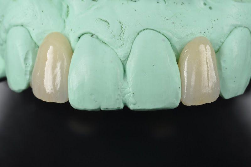 e.max Maryland Bridge Estetica dental, Odontología