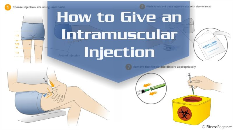 Discover guidelines to preparing an injection dose, locating IM injection  sites and giving an intramu… | B12 injections, Im injection, Intramuscular  injection sites
