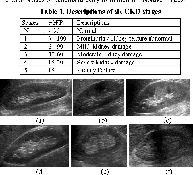 Table 1 From Stage Classification In Chronic Kidney Disease By Ultrasound Image Semantic Scholar Chronic Kidney Disease Kidney Disease Kidney Disease Stages