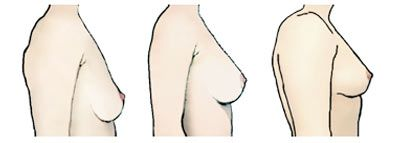 9ab50e5f3b Classify Your Breasts  Breast Position. Expert Bra Fitting Advice by Tomima  Edmark