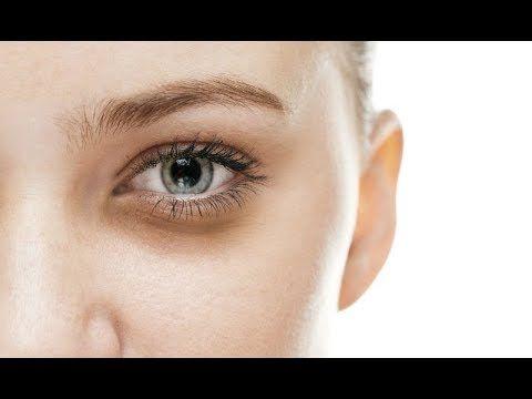 Remove dark circles under the eyes | Dark circles under ...