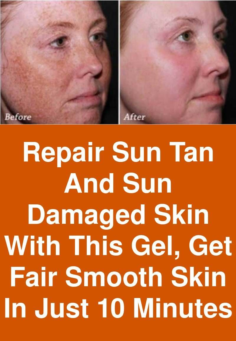 Repair Sun Tan And Sun Damaged Skin With This Gel Get Fair Smooth Skin In Just 10 Minutes You Ve Probably Heard Abou Sun Damaged Skin Damaged Skin Smooth Skin