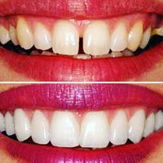 Veneers done right! Veneers  #dentistry #dentist #dentalassistant #dentalhygiene #dentalschool #dentallife #dentalwork #dentistrystudent #dentalstudent #veneer #veneers #cosmeticdentistry by dentalchat Our Cosmetic Dentistry Page: http://www.myimagedental.com/services/cosmetic-dentistry/ Google My Business: https://plus.google.com/ImageDentalStockton/about Our Yelp Page: http://www.yelp.com/biz/image-dental-stockton-3 Our Facebook Page: https://www.facebook.com/MyImageDental Image Dental…