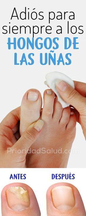 como curar hongos en las unas del pie